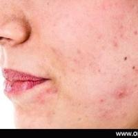 acne treatment in hyderabad | acne treatment clinics in hyderabad at originclinic in HYDERABAD