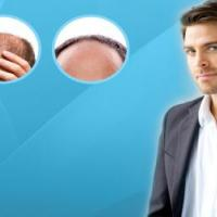 Hair transplant at spurthairclinic in Pune