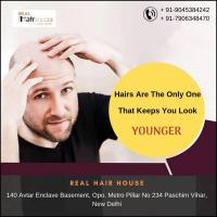 Hair Patch in Delhi , Hair Wig, Tattoo Removal at Realhairhouse in Delhi