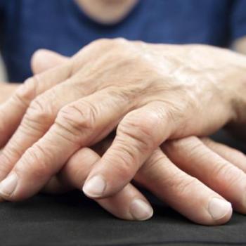 Osteoarthritis,Rheumatoid arthritis,Gouty arthritis at AVM Ayurveda Hospital in Irapuram